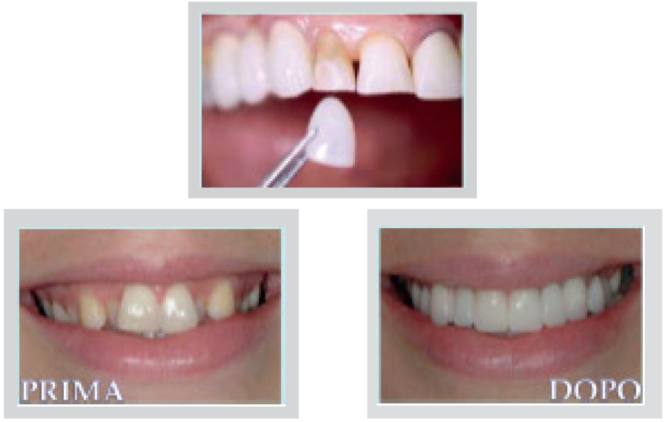 crudo arcate dentarie